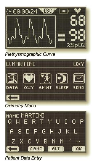 Plethysmographic Curve, Oximetry Menu, Patient Data Entry
