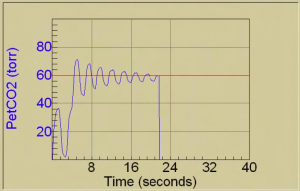 cardiac output measurement